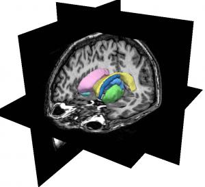 Structures anatomiques du cerveau et une tumeur (Equipe IMAGES)